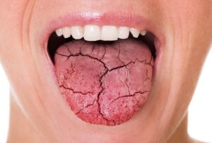 Dryness of Mouth